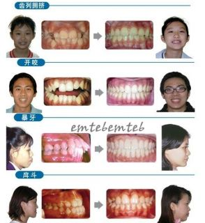 10 Dental Tooth Orthodontic Appliance Traier Alignment